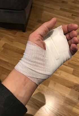 FIKK HJELP: Slik så Tores hånd ut etter legebesøket. Foto: Privat