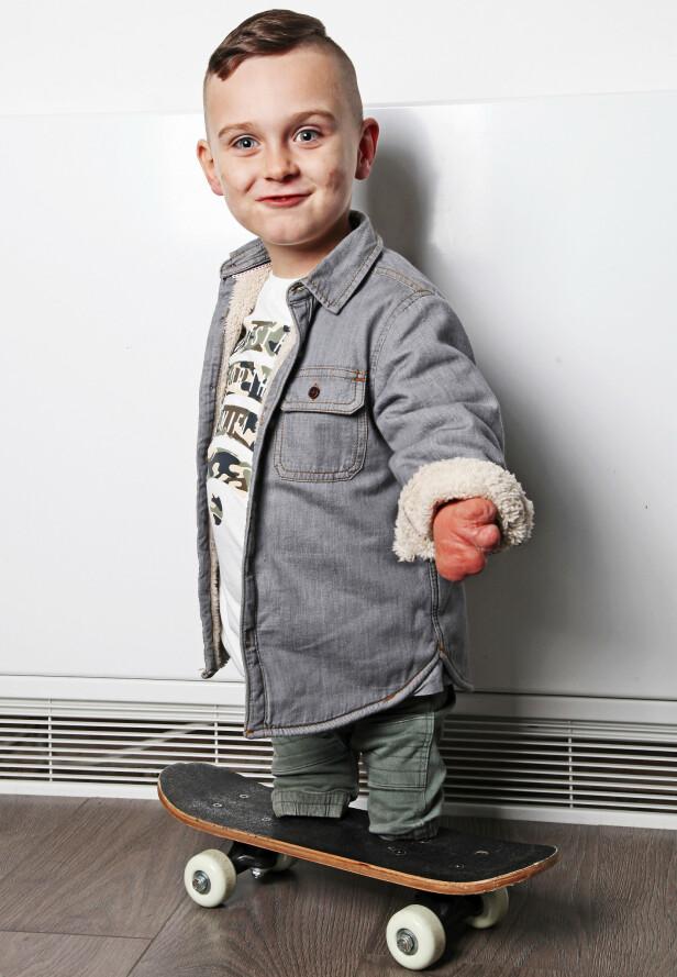 BLID: Taylor kan ikke bruke proteser fordi det er for smertefullt. Men et skateboard gjør at han kommer seg rundt Foto: NTB scanpix