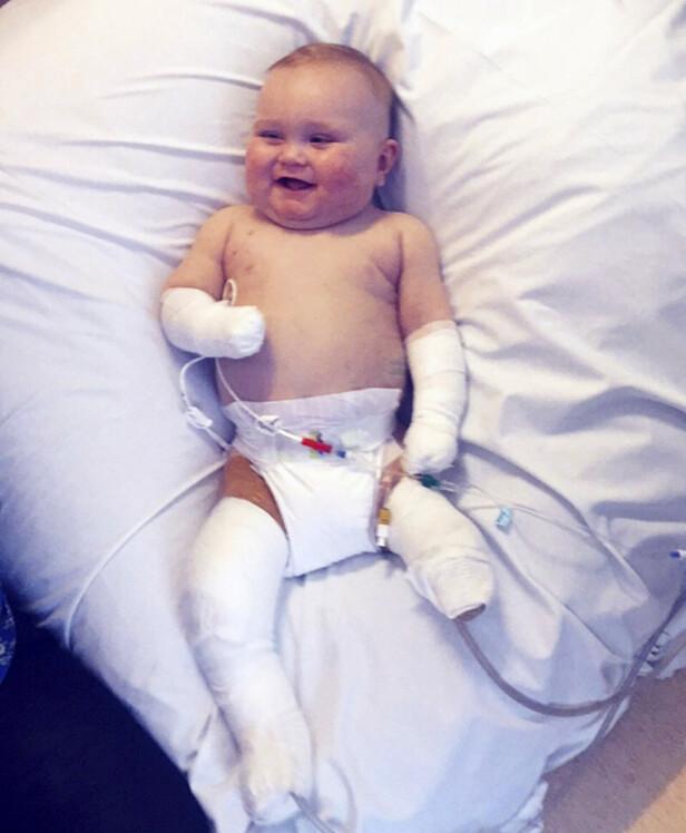 TAPPERT SMIL: Etter at han våknet fra koma, var lille Taylor uvitende om at legene hadde amputert beina og fingrene hans. Foto: NTB scanpix
