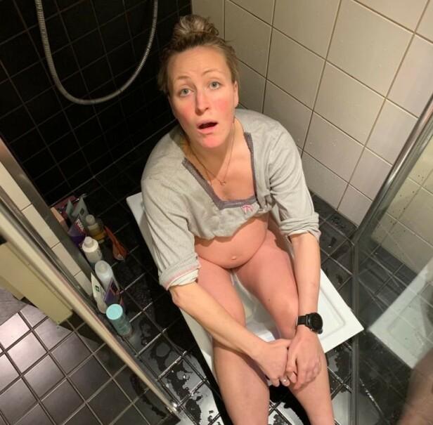RÅDVILL: Hartmann-Næss forteller at hun forsøkte å sitte i grønnsåpevann fordi hun trodde det skulle hjelpe. - Jeg var rådvill, sier hun. Foto: Privat