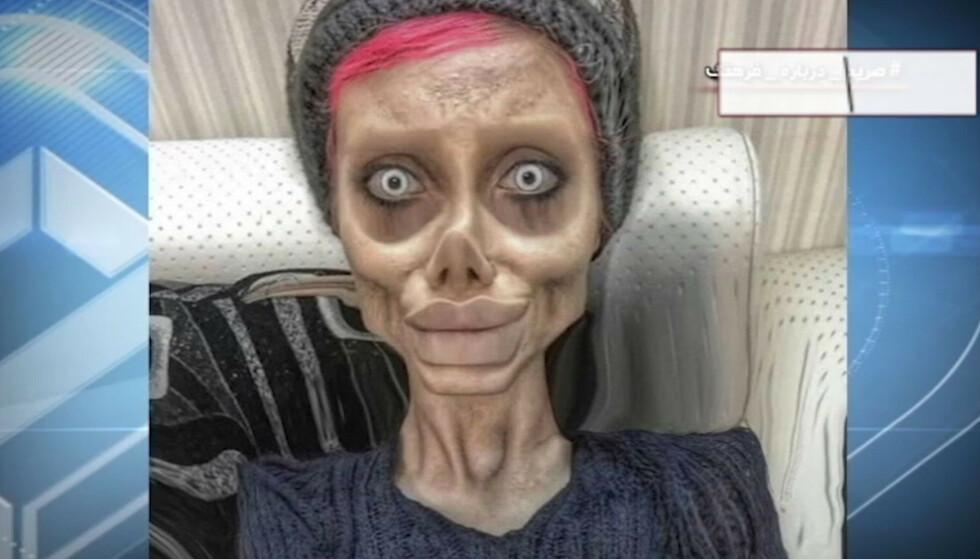 CORONASMITTET: Sahar Tabar, hvis egentlige navn er Fatemeh Khishvand, er blitt smittet av coronaviruset i fengsel, og ligger på sykehus, sier menneskerettighetsadvokat. Foto: Skjermdump fra iranske IRIB, NTB Scanpix