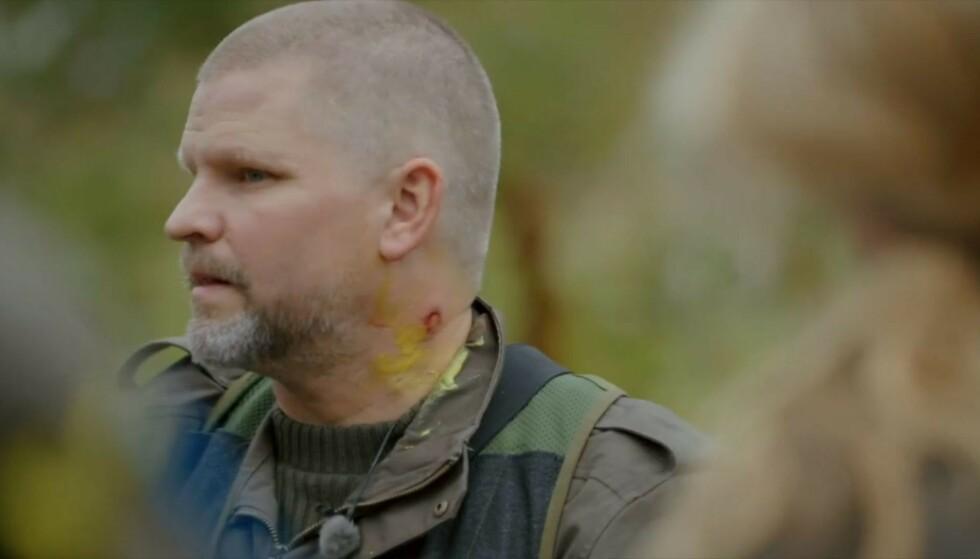FIKK ARR: Paintballkula gikk gjennom huden til Håvard Lilleheie og etterlot et sår. Foto: TV 2