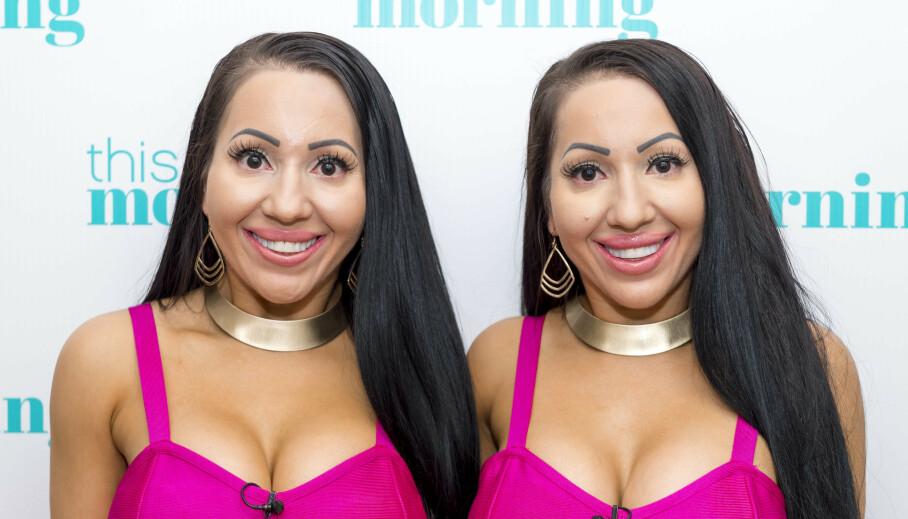 IDENTISKE: Tvillingene Anna og Lucy DeCinque deler alt. Nå ønsker de barn samtidig - med den samme mannen. Foto: NTB Scanpix