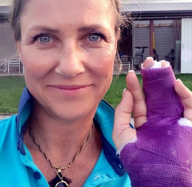 AU DA: Prinsesse Märtha Louise falt av hesten og brakk fingeren i fjor. Foto: Privat / Instagram