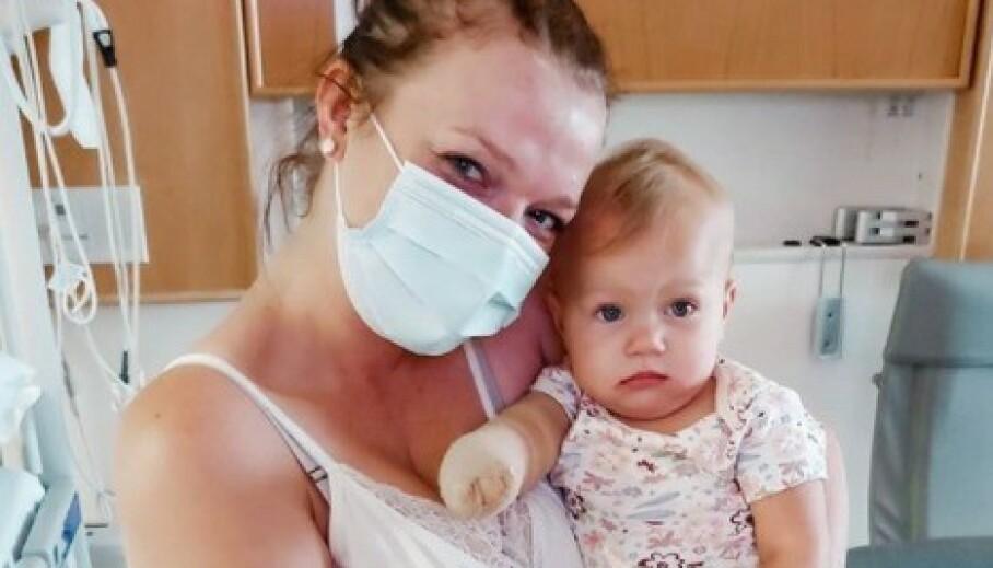 I HARDT VÆR: Realitystjernen Maddie Brown Brush og ektemannens Caleb Brushs beslutning om å amputere deres ett år gamle datters bein, har ikke gått upåaktet hen. Tidligere har hun fått amputert armen. Foto: Skjermdump fra Instagram/madison_rose11