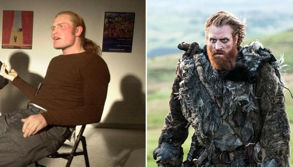 <strong>FØR OG NÅ:</strong> I 2001, da Kristofer Hivju spilte i stykket «Er du med eller ute?», var det kun hodehåret han hadde latt gro fritt. De par siste årene er det flammerøde skjegget hans blitt et internasjonalt varemerke, blant annet gjennom rollen hans i «Game of Thrones». Foto: NTB Scanpix/ HBO