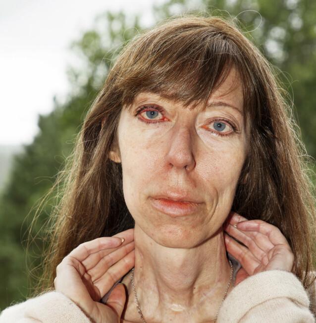 HOLDER MOTET OPPE: En sjelden genfeil gjør at Sandra Shepherd fra Kornsjø har måttet tåle mye smerte. – Men med hånden på hjertet må jeg si at jeg har hatt et godt liv, sier hun. Foto: Svend Aage Madsen/ Se og Hør