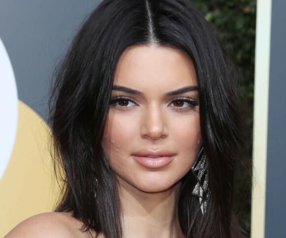 KVISER: Kendall Jenner fikk mye oppmerksomhet for sin urene hud under Golden Globe-utdelingen for to år siden. Foto: REX / Shutterstock / NTB