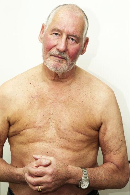 KREFTFRI: Ian Chapman fra Lillehammer er glad hans dobbeltsidige brystkreft ble oppdaget i tide. To store arr er alt som synes der brystvortene en gang var. 75-åringen planlegger å skjule dem med en tatovering. Foto: Svend Aage Madsen / Se og Hør