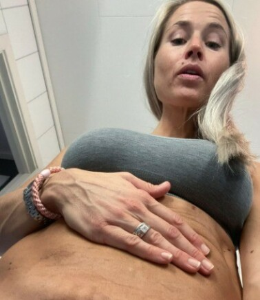 Image: Om mammakroppen: - Alt er endret