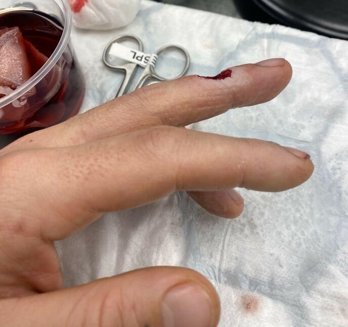 AU: Kuttet med kniven ga et dypt søkk i fingeren. Foto: Privat
