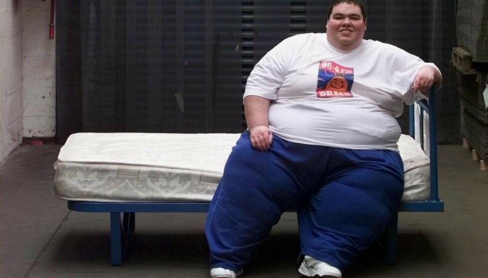 DØD: Den britiske tv-profilen Barry Austin er død, 52 år gammel. Han var på et tidspunkt regnet som den tyngste personen i Storbritannia. Her fotografert i 1999 - 300 kilo tung. Foto: REX / NTB