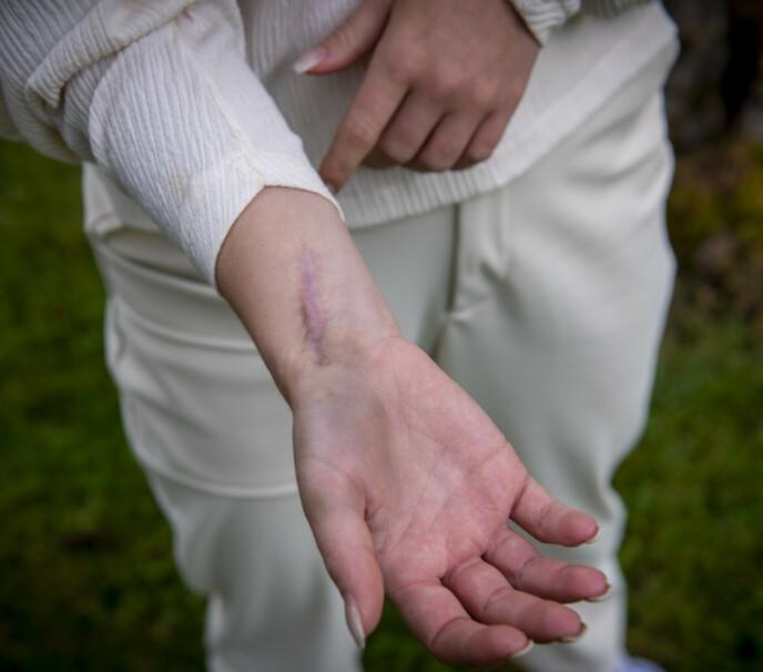 VOND SKADE: Håndleddet har plaget Genette i mange år. I 2018 valgte hun å slutte. Foto: Lars Eivind Bones / Dagbladet