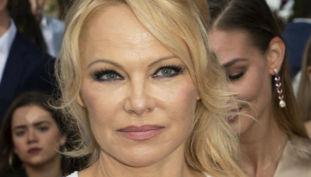SLAKTER: Verdensberømte Pamela Anderson er ikke imponert over verken Lily James eller Sebastian Stan - eller at det overhodet lages TV-serie om henne og eksmannen Tommy Lee. Foto: Piovanotto Marco / ABACA / NTB