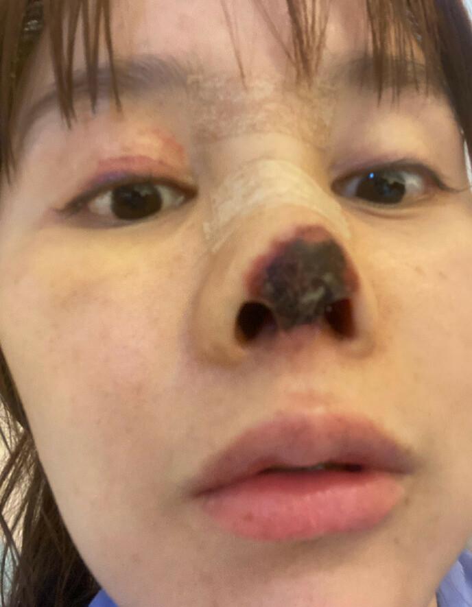 Nesen råtnet etter operasjon