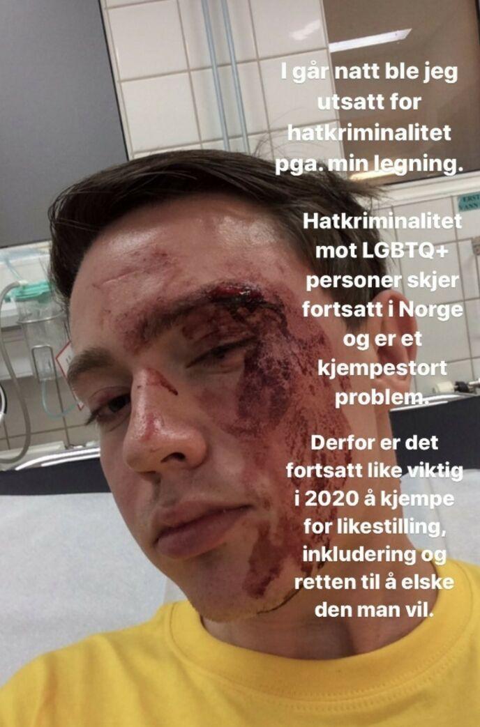 SJOKKERT: Jan Thomas mottok denne skjermdumpen av en ansatt, og fikk sjokk over at slikt som dette kan skje i Norge. Foto: Skjermdump Instagram