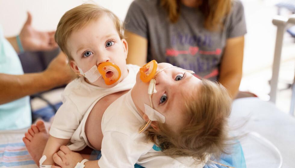HVERT SITT HJERTE: Tvillingjentene delte heldigvis ingen viktige organer – noe som gjorde en operasjon mulig. Foto: Joe Hallisy / NTB