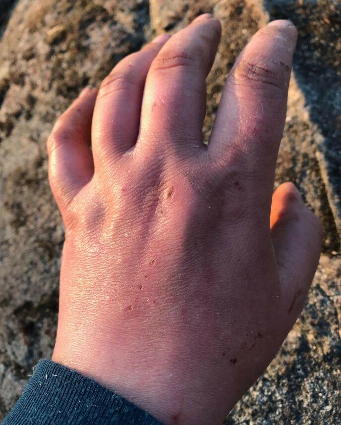 FLIS: Trine fikk en flis i fingeren, som seinere utviklet seg til blodforgiftning. Foto: Privat