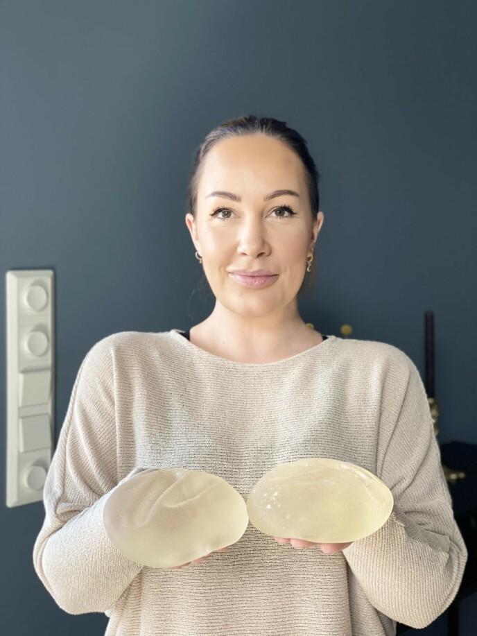 UT AV KROPPEN: Cecilie viser frem implantatene hun hadde i brystene. Foto: Privat