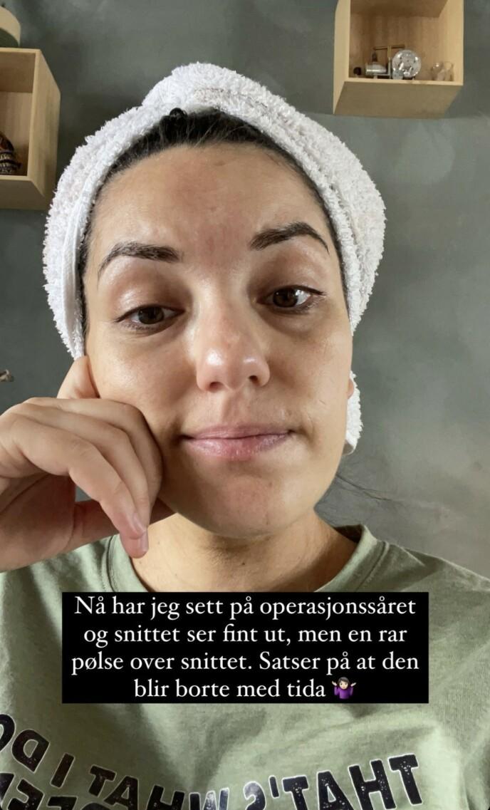 «PØLSE»: På Instagrams historiefunksjon forteller Selda Ekiz at fødselen skjedde ved hjelp av keisersnitt. Foto: Skjermdump Instagram