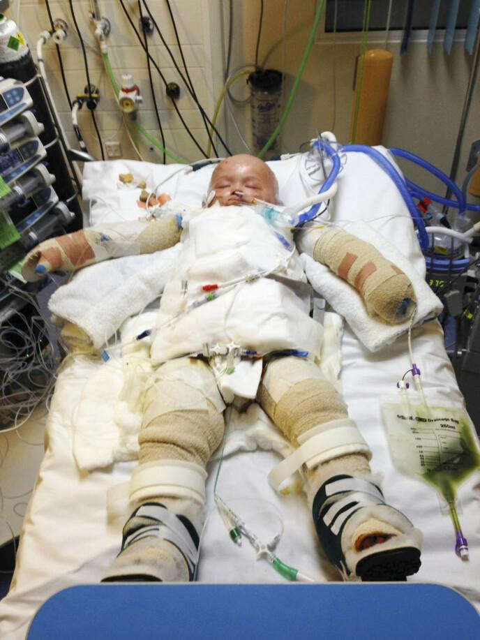 SOM EN MUMIE: Guttungen fikk førsteklasses behandling, og var bandasjert fra topp til tå. Foto: Privat