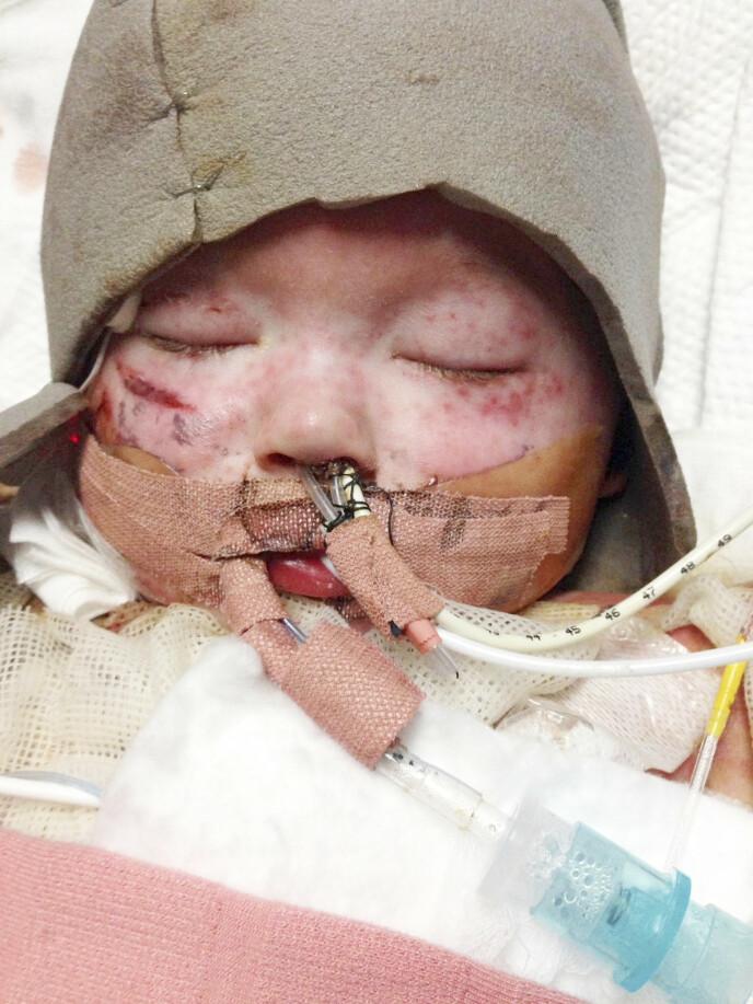 DØDEN NÆR: Jenson var så skadet at legene ga ham tre prosent sjanse til å overleve. Foto: Privat