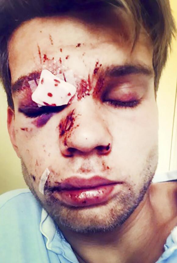 HARDT SKADET: Ansiktet til Jone så forferdelig ut etter ulykken. Men han priser seg lykkelig for at han overlevde. Foto: Privat
