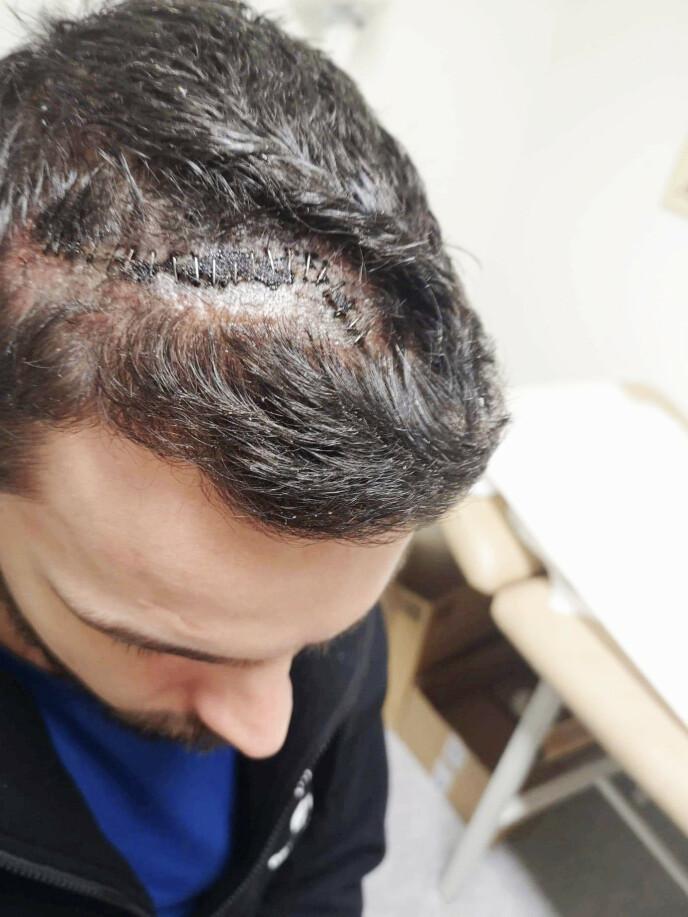 INNGREP: Ron Daniel er operert to ganger i hjernen. Et 12 centimeter langt arr setter sine spor. Foto: Privat