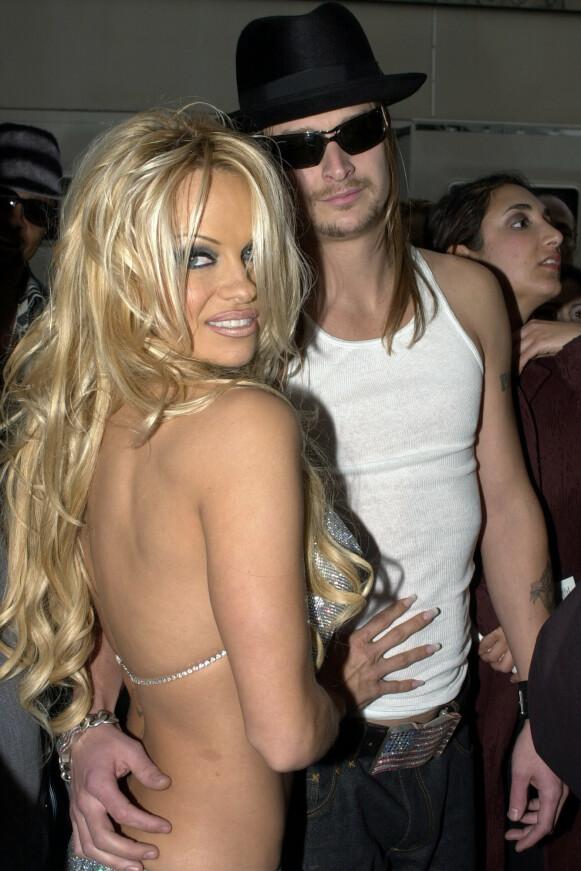 DEN EKTE PAMELA: Slik så hun ut under American Music Award i 2002. Her med sin daværende ektemann Kid Rock. Foto: NTB
