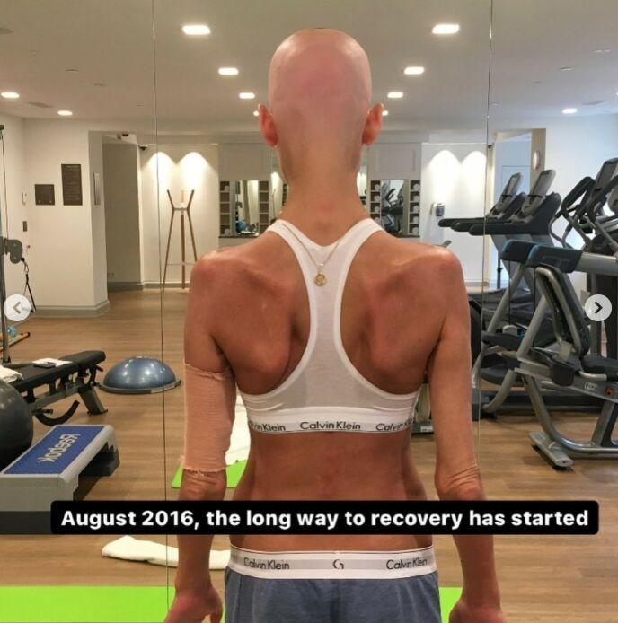 LANG REISE: Etter transplantasjonene startet den lange reisen mot å bli frisk. Foto: Gjengitt med tillatelse fra Instagram