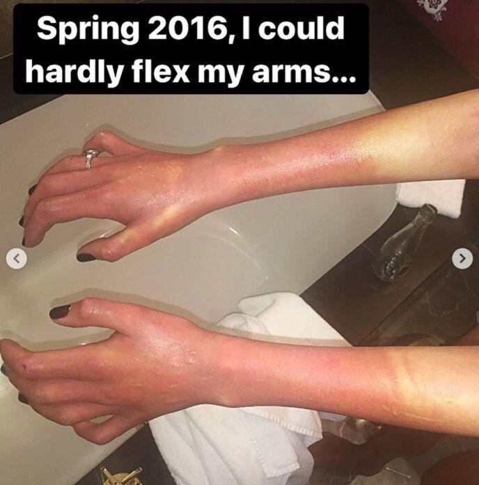 SYK: I 2016 var Gunhild så syk at hun knapt kunne bevege armene. Foto: Gjengitt med tillatelse fra Instagram