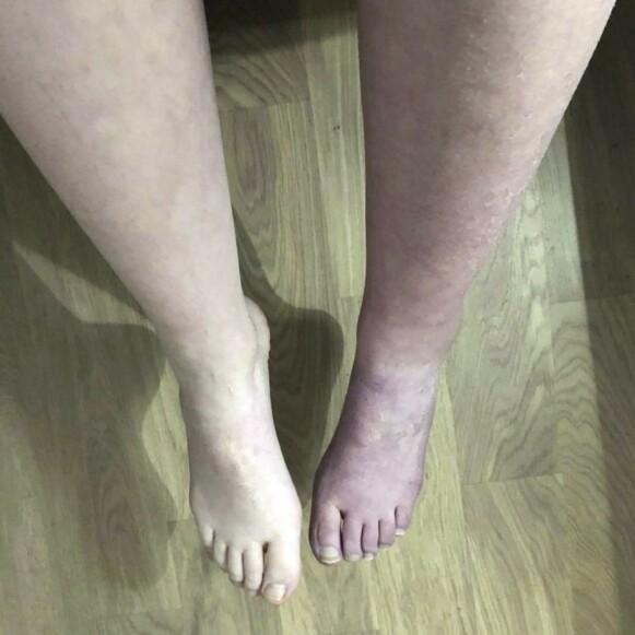 HOVNET VOLDSOMT: Det startet med smerter i foten – men etter hvert spredde smertene seg i hele kroppen. Foto: Privat