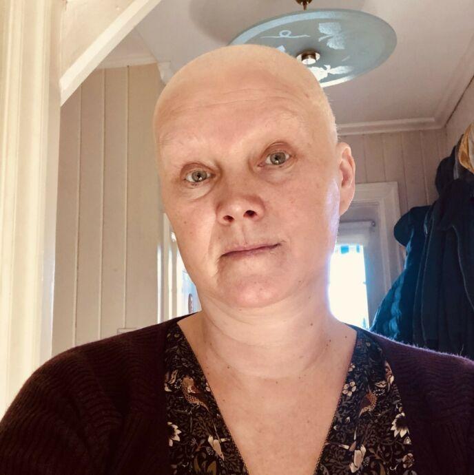 BLE SKALLA: 50-åringen gikk gjennom en vellykket runde med cellegift. Nå må hun gjennom runde nummer to. Foto: Privat