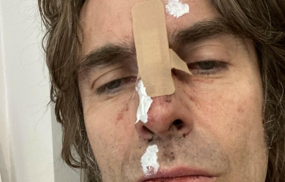 SKADE: Sangeren skadet seg etter å ha falt ut av et helikopter. Foto: Liam Gallagher/ Twitter
