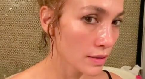 Image: Slik svarer hun på botox-anklagene