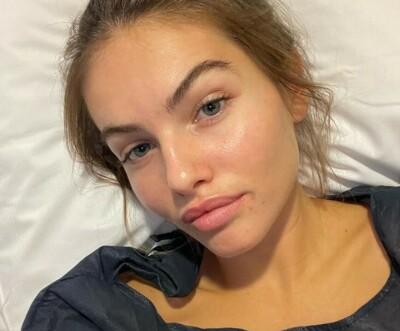 Image: «Verdens vakreste jente» hasteoperert